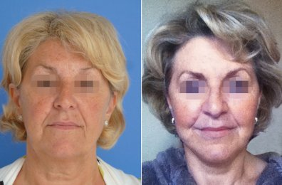 Face Lift (SMAS), Neck Lift