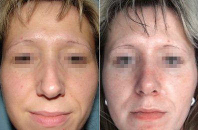 Rhinoplasty - Nose Surgery