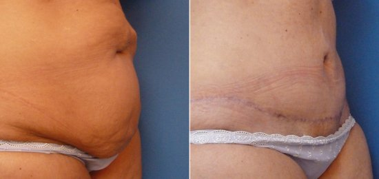 Tummy Tuck - Abdominoplasty